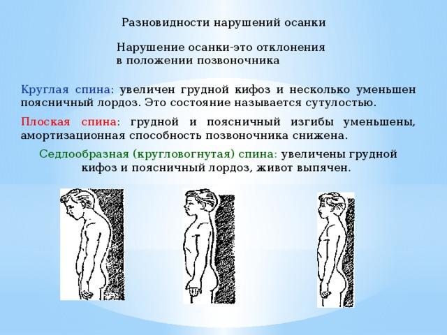 Осанка и виды ее нарушений   ВКонтакте   480x640