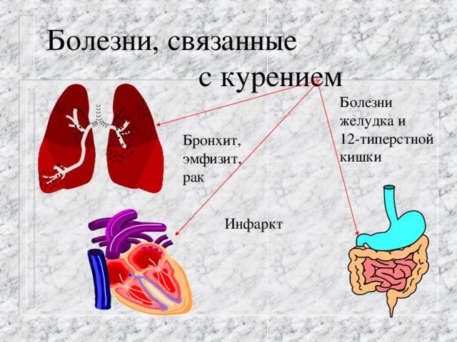 Болезни, связанные  с курением Болезни желудка и 12-типерстной кишки Бронхит, эмфизит, рак Инфаркт