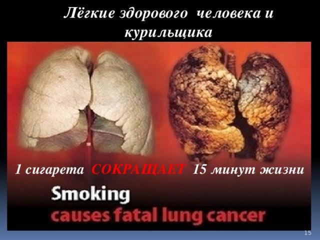 Лёгкие здорового человека и курильщика 1 сигарета СОКРАЩАЕТ 15 минут жизни
