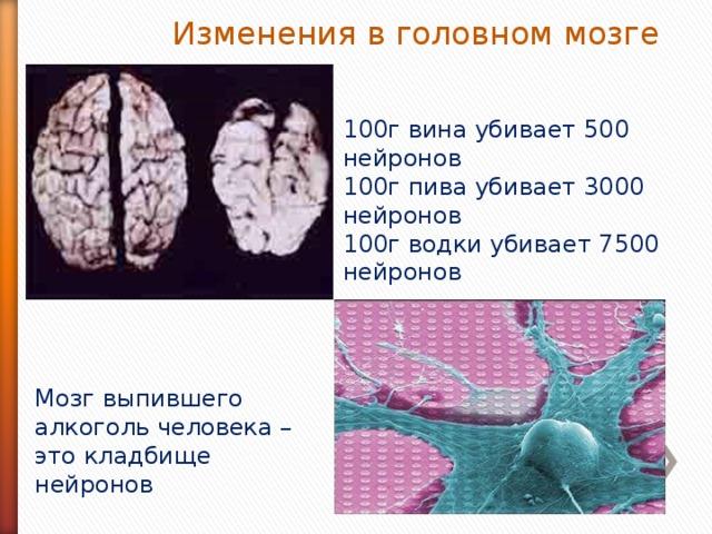 Изменения в головном мозге 100г вина убивает 500 нейронов 100г пива убивает 3000 нейронов 100г водки убивает 7500 нейронов Мозг выпившего алкоголь человека – это кладбище нейронов