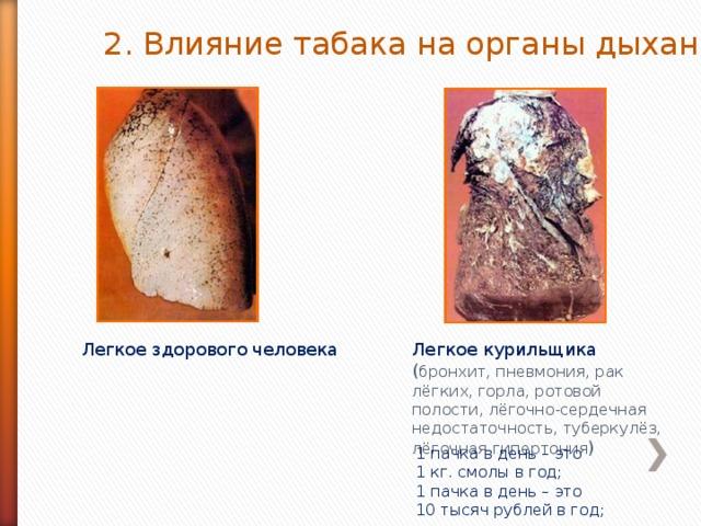 2. Влияние табака на органы дыхания. Легкое здорового человека Легкое курильщика ( бронхит, пневмония, рак лёгких, горла, ротовой полости, лёгочно-сердечная недостаточность, туберкулёз, лёгочная гипертония ) 1 пачка в день – это 1 кг. смолы в год; 1 пачка в день – это 10 тысяч рублей в год;