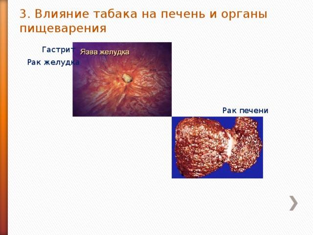 3. Влияние табака на печень и органы пищеварения Гастрит Рак желудка Рак печени