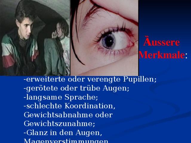 Ȁussere Merkmale : - erweiterte oder verengte Pupillen ; - gerötete oder trübe Augen; - langsame Sprache; - schlechte Koordination, Gewichtsabnahme oder Gewichtszunahme; - Glanz in den Augen, Magenverstimmungen.