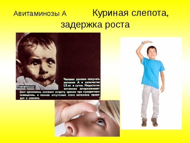 Авитаминозы А  Куриная слепота, задержка роста