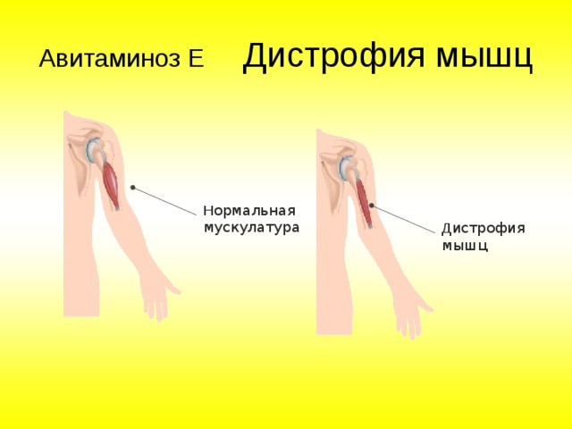 Авитаминоз Е Н ормальная мускулатура Д истрофия мышц