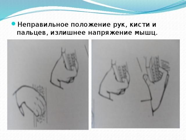 Неправильное положение рук, кисти и пальцев, излишнее напряжение мышц.