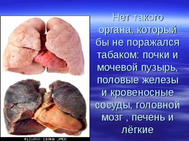 Нет такого органа, который бы не поражался табаком: почки и мочевой пузырь, половые железы и кровеносные сосуды, головной мозг , печень и лёгкие
