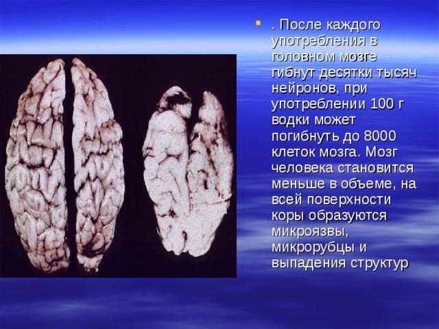 . После каждого употребления в головном мозге гибнут десятки тысяч нейронов, при употреблении 100 г водки может погибнуть до 8000 клеток мозга. Мозг человека становится меньше в объеме, на всей поверхности коры образуются микроязвы, микрорубцы и выпадения структур