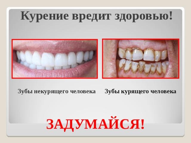Курение вредит здоровью!   Зубы некурящего человека Зубы курящего человека ЗАДУМАЙСЯ!