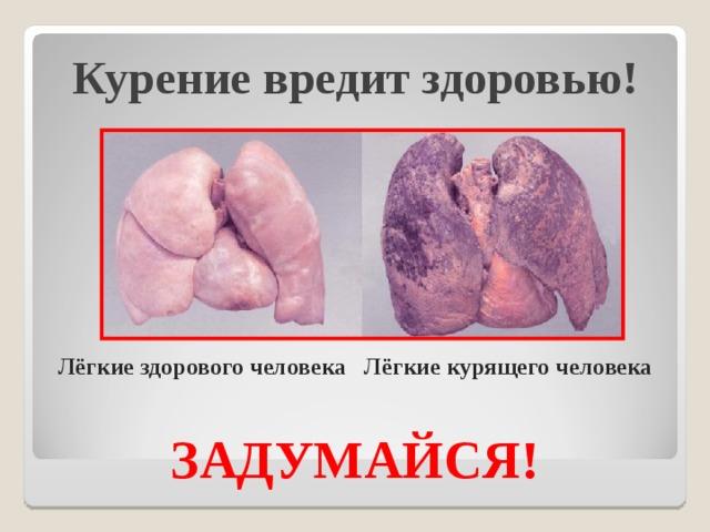 Курение вредит здоровью!        Лёгкие здорового человека Лёгкие курящего человека   ЗАДУМАЙСЯ!