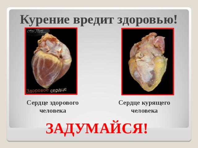 Курение вредит здоровью!   Сердце здорового человека Сердце курящего человека ЗАДУМАЙСЯ!