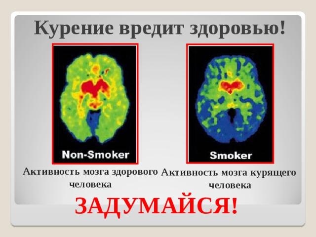 Курение вредит здоровью!   Активность мозга здорового человека Активность мозга курящего человека ЗАДУМАЙСЯ!