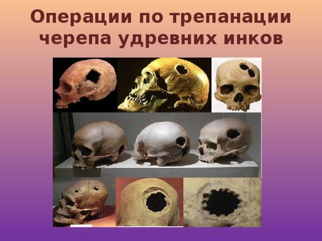 Операции по трепанации черепа удревних инков
