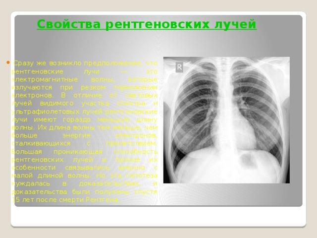 Свойства рентгеновских лучей