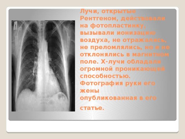 Лучи, открытые Рентгеном, действовали на фотопластинку, вызывали ионизацию воздуха, не отражались, не преломлялись, но и не отклонялись в магнитном поле. X-лучи обладали огромной проникающей способностью. Фотография руки его жены  oпубликованная в его статье.