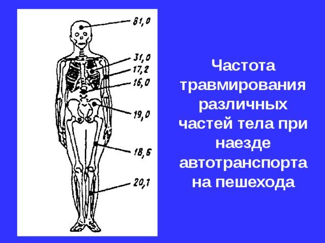 Частота травмирования различных частей тела при наезде автотранспорта на пешехода