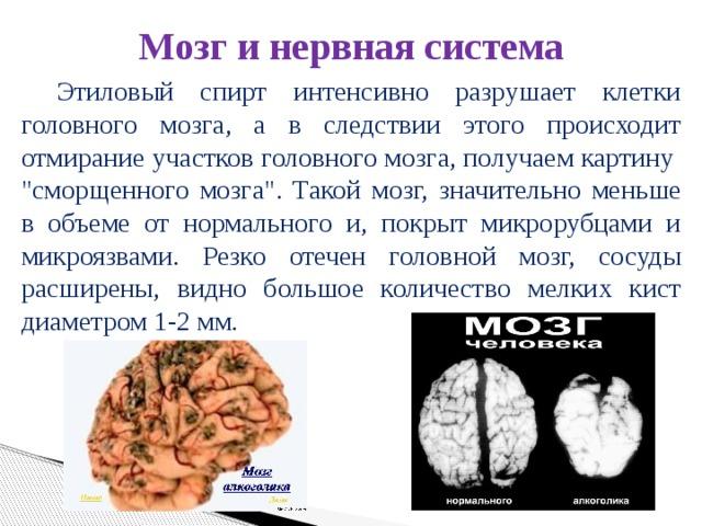Мозг и нервная система     Этиловый спирт интенсивно разрушает клетки головного мозга, а в следствии этого происходит отмирание участков головного мозга, получаем картину