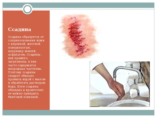 Ссадина Ссадина образуется от соприкосновения кожи с неровной, жёсткой поверхностью, например землёй, асфальтом. Ссадины , как правило, загрязнены, в них часто содержатся инородные частички. Поэтому ссадины следует обильно промыть водой с мылом и обработать раствором йода. Если ссадина обширна и кровоточит, её нужно прикрыть бинтовой повязкой.