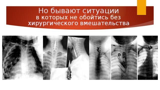 Но бывают ситуации в которых не обойтись без хирургического вмешательства