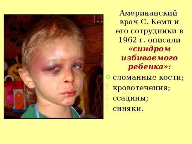 Американский врач С. Кемп и его сотрудники в 1962 г. описали «синдром избиваемого ребенка»: