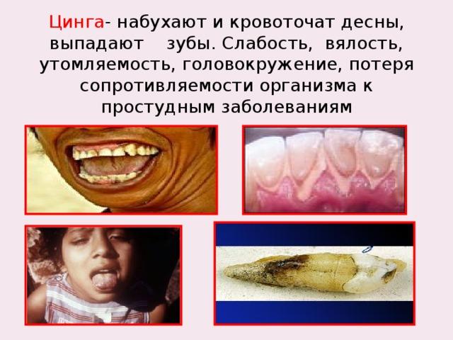 Цинга - набухают и кровоточат десны, выпадают зубы. Слабость, вялость, утомляемость, головокружение, потеря сопротивляемости организма к простудным заболеваниям