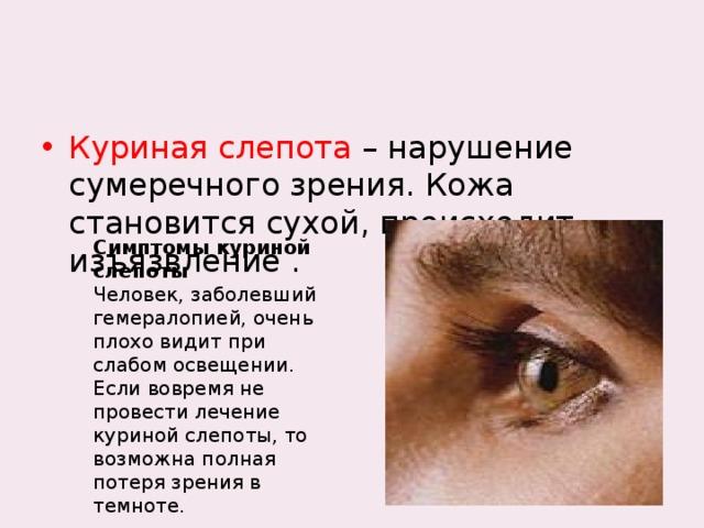 Куриная слепота – нарушение сумеречного зрения. Кожа становится сухой, происходит изъязвление .