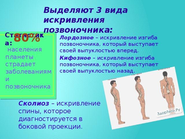 Выделяют 3 вида искривления позвоночника: Лордозное – искривление изгиба позвоночника, который выступает своей выпуклостью вперед. Кифозное – искривление изгиба позвоночника, который выступает своей выпуклостью назад. Статистика:  80%  населения планеты страдает заболеваниями позвоночника Сколиоз – искривление спины, которое диагностируется в боковой проекции.