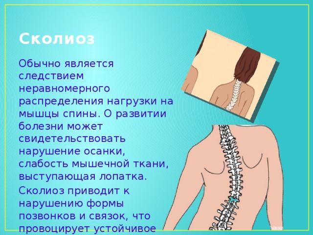 Сколиоз Обычно является следствием неравномерного распределения нагрузки на мышцы спины. О развитии болезни может свидетельствовать нарушение осанки, слабость мышечной ткани, выступающая лопатка. Сколиоз приводит к нарушению формы позвонков и связок, что провоцирует устойчивое искривление.