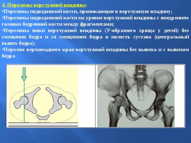 4. Переломы вертлужной впадины :