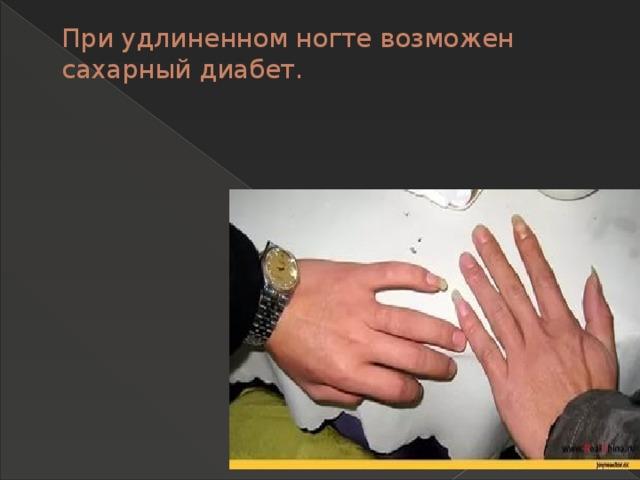 При удлиненном ногте возможен сахарный диабет.