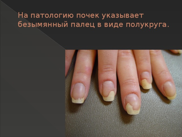 На патологию почек указывает безымянный палец в виде полукруга.