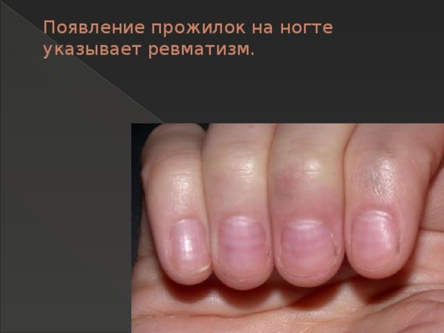 Появление прожилок на ногте указывает ревматизм.