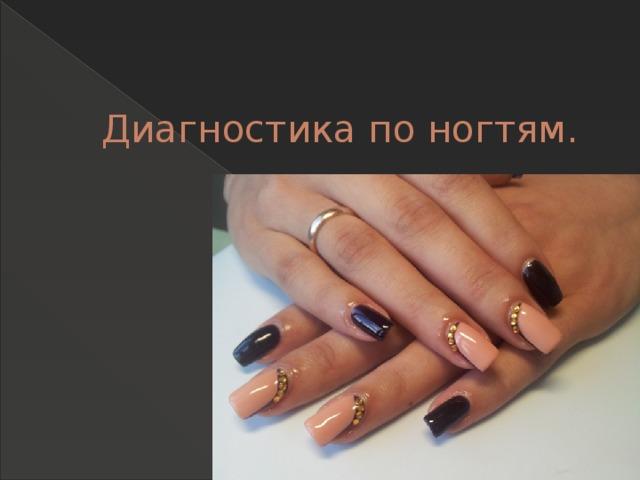 Диагностика по ногтям.
