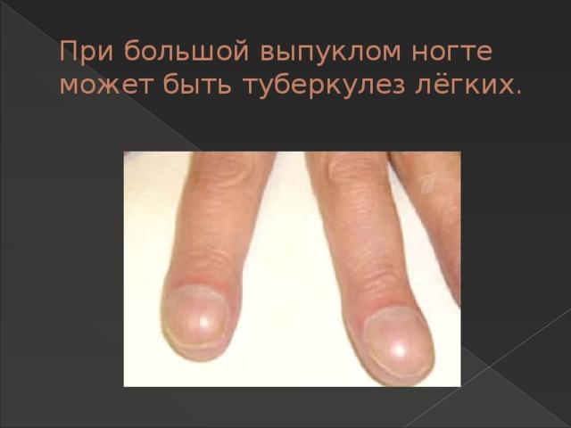 При большой выпуклом ногте может быть туберкулез лёгких.