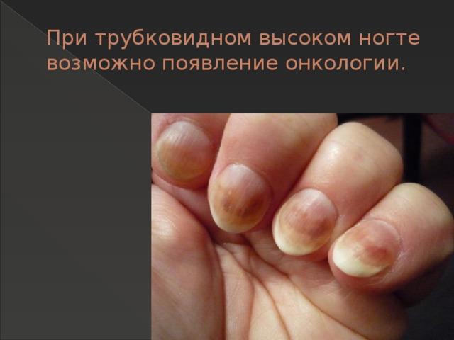 При трубковидном высоком ногте возможно появление онкологии.