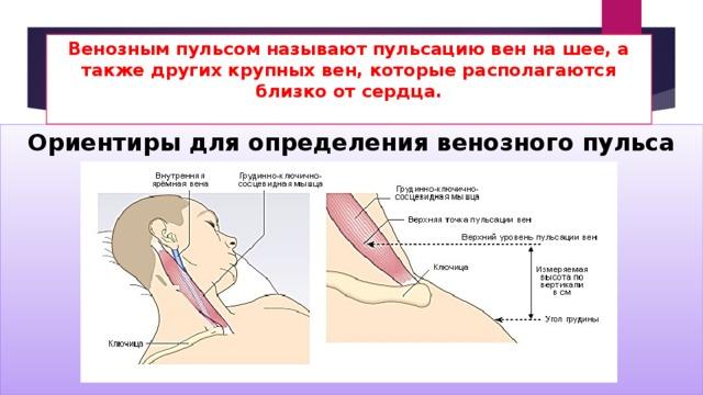 Венозным пульсом называют пульсацию вен на шее, а также других крупных вен, которые располагаются близко от сердца.   Ориентиры для определения венозного пульса