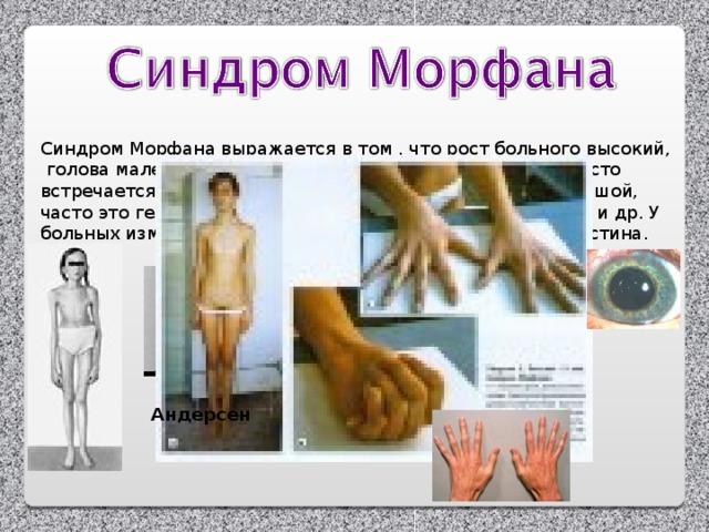 Синдром Морфана выражается в том , что рост больного высокий,  голова маленькая, очень длинные руки, ноги, пальцы, часто встречается порок сердца, пальцы очень гибкие, нос большой, часто это гении: Паганини, Андерсен, Чуковский, Врубель и др. У больных изменение гена 15 пары, связано с синтезом эластина. Андерсен