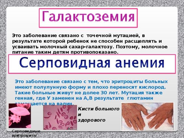 Это заболевание связано с точечной мутацией, в результате которой ребенок не способен расщеплять и усваивать молочный сахар-галактозу. Поэтому, молочное питание таким детям противопоказано. Это заболевание связано с тем, что эритроциты больных имеют полулунную форму и плохо переносят кислород. Такие больные живут не долее 30 лет. Мутация также генная, где У заменен на А,В результате глютамин замещается на валин. Кисти больного и здорового Серповидные эритроциты