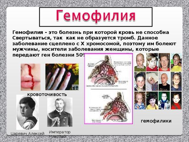 Гемофилия - это болезнь при которой кровь не способна Свертываться, так как не образуется тромб. Данное заболевание сцеплено с Х хромосомой, поэтому им болеют мужчины, носители заболевания женщины, которые передают ген болезни 50% своих сыновей.  кровоточивость гемофилики Император Николай Царевич Алексей