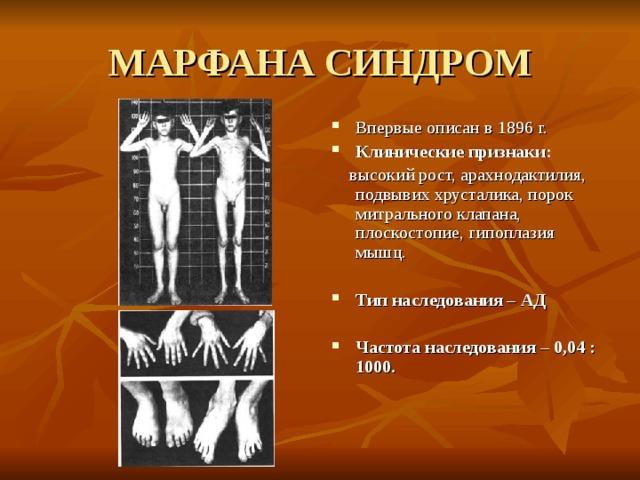 МАРФАНА СИНДРОМ Впервые описан в 1896 г. Клинические признаки:  высокий рост,  арахнодактилия, подвывих хрусталика, порок митрального клапана, плоскостопие, гипоплазия мышц.
