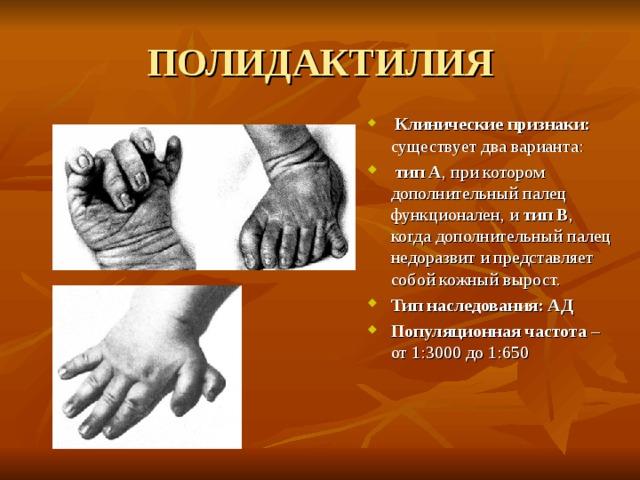 ПОЛИДАКТИЛИЯ  Клинические признаки: существует два варианта:  тип А , при котором дополнительный палец функционален, и тип В , когда дополнительный палец недоразвит и представляет собой кожный вырост. Тип наследования: АД Популяционная частота – от 1:3000 до 1:650