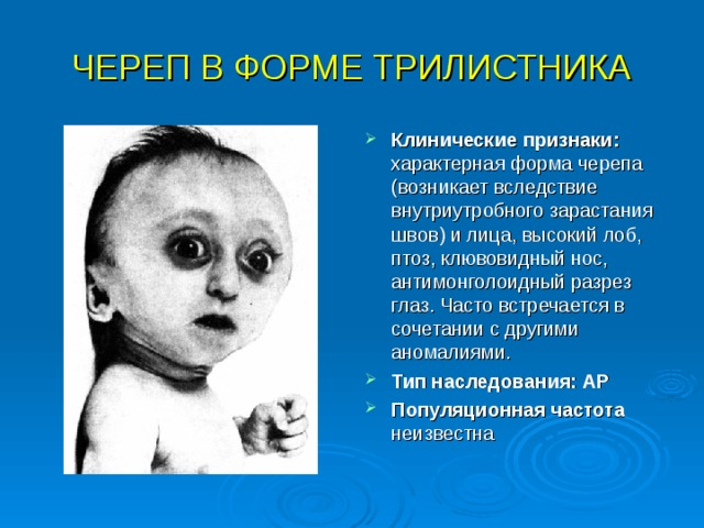 ЧЕРЕП В ФОРМЕ ТРИЛИСТНИКА