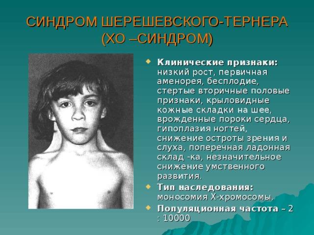 СИНДРОМ ШЕРЕШЕВСКОГО-ТЕРНЕРА (ХО –СИНДРОМ)