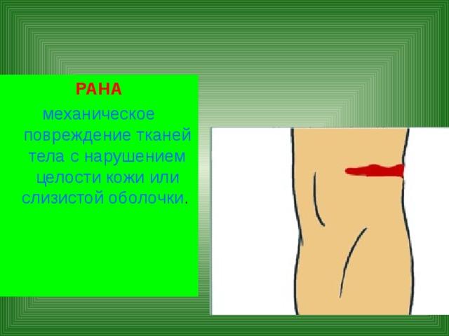 РАНА механическое повреждение тканей тела с нарушением целости кожи или слизистой оболочки .
