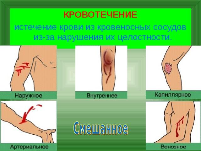 КРОВОТЕЧЕНИЕ истечение крови из кровеносных сосудов из-за нарушения их целостности.