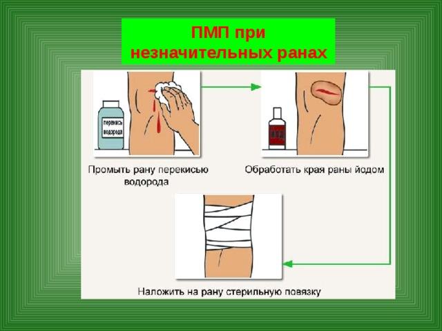 ПМП при незначительных ранах