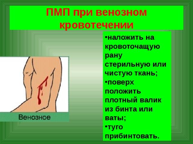 ПМП при венозном кровотечении
