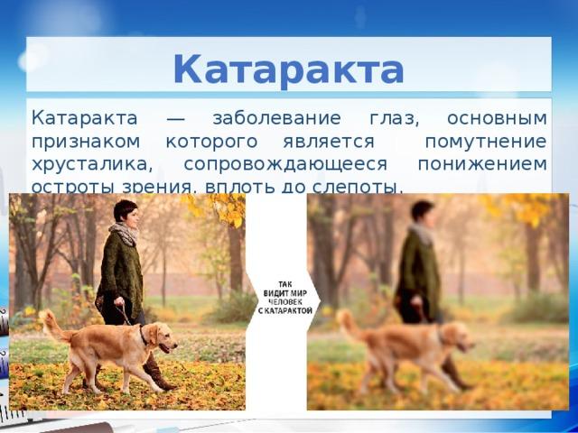 Катаракта Катаракта — заболевание глаз, основным признаком которого является помутнение хрусталика, сопровождающееся понижением остроты зрения, вплоть до слепоты.