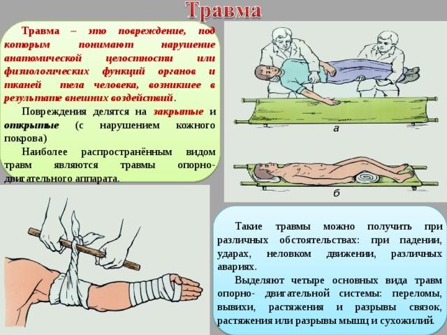 Травма  – это повреждение, под которым понимают нарушение анатомической целостности или физиологических функций органов и тканей тела человека, возникшее в результате внешних воздействий . Повреждения делятся на закрытые и открытые (с нарушением кожного покрова) Наиболее распространённым видом травм являются травмы опорно-двигательного аппарата. Такие травмы можно получить при различных обстоятельствах: при падении, ударах, неловком движении, различных авариях. Выделяют четыре основных вида травм опорно- двигательной системы: переломы, вывихи, растяжения и разрывы связок, растяжения или разрывы мышц и сухожилий.