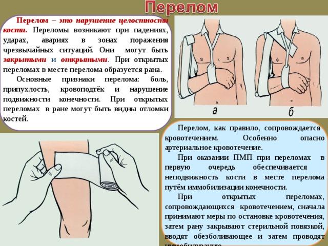 Перелом  – это нарушение целостности кости. Переломы возникают при падениях, ударах, авариях в зонах поражения чрезвычайных ситуаций. Они могут быть закрытыми и открытыми . При открытых переломах в месте перелома образуется рана. Основные признаки перелома: боль, припухлость, кровоподтёк и нарушение подвижности конечности. При открытых переломах в ране могут быть видны отломки костей. Перелом, как правило, сопровождается кровотечением. Особенно опасно артериальное кровотечение. При оказании ПМП при переломах в первую очередь обеспечивается неподвижность кости в месте перелома путём иммобилизации конечности. При открытых переломах, сопровождающихся кровотечением, сначала принимают меры по остановке кровотечения, затем рану закрывают стерильной повязкой, вводят обезболивающее и затем проводят иммобилизацию.